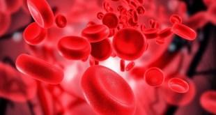 مقال - أسباب نقص الحديد في الجسم آثاره وعلاجه