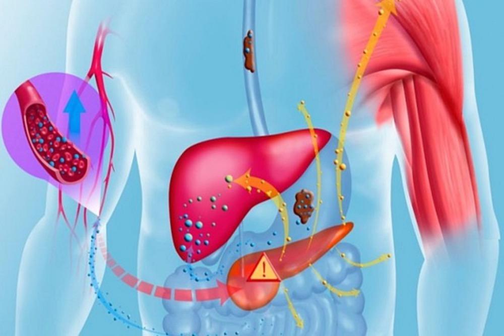مقال - هذه الأطعمة تساعد على تنقية الكبد من السّموم - موقع علوم العرب