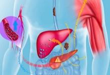 صورة مقال – هذه الأطعمة تساعد على تنقية الكبد من السّموم