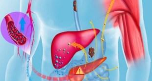 مقال - هذه الأطعمة تساعد على تنقية الكبد من السّموم