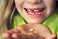 صورة مقال – لماذا يجب الاحتفاظ بأسنان  طفلك اللبنية بعد سقوطها؟