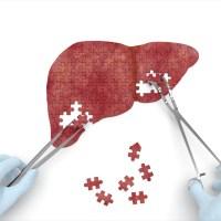 مقال - أفضل 8 أطعمة لتنقية الكبد من السموم