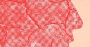 مقال - كيف نحمي بشرتنا من الجفاف في الشتاء؟