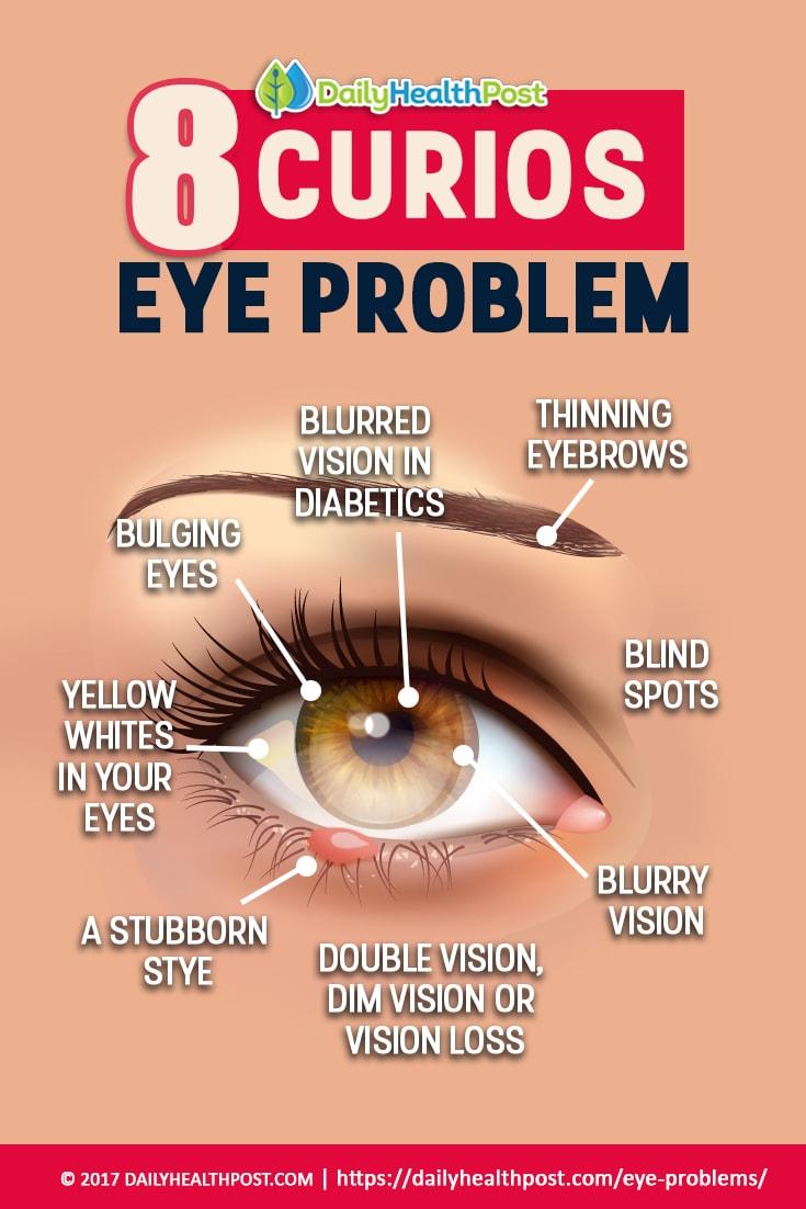 مقال - 8 مشاكل صحية تخبرك بها عيناك