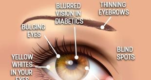 مقال – 8 مشاكل صحية تخبرك بها عيناك