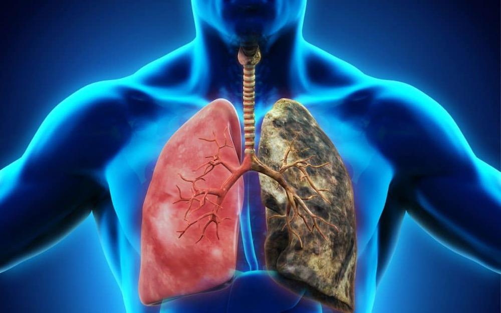 مقال – نقص الأكسجين .. الأعراض و الأسباب !