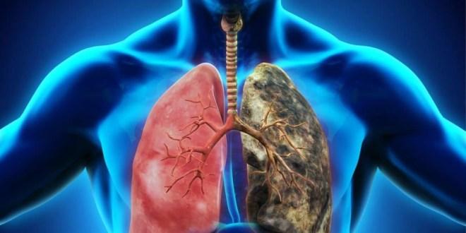 مقال - نقص الأكسجين .. الأعراض و الأسباب !