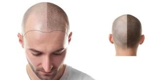 مقال - 4 أسئلة يجب طرحها قبل زراعة الشعر؟