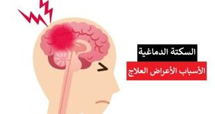 مقال - السكتة الدماغية .. الأسباب و الأعراض و العلاج