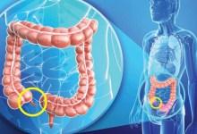 صورة ماهي أعراض التهاب الزائدة الدودية؟