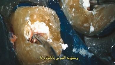 مترجم - الوثائقي الطبي عن عصب الأسنان Root Cause