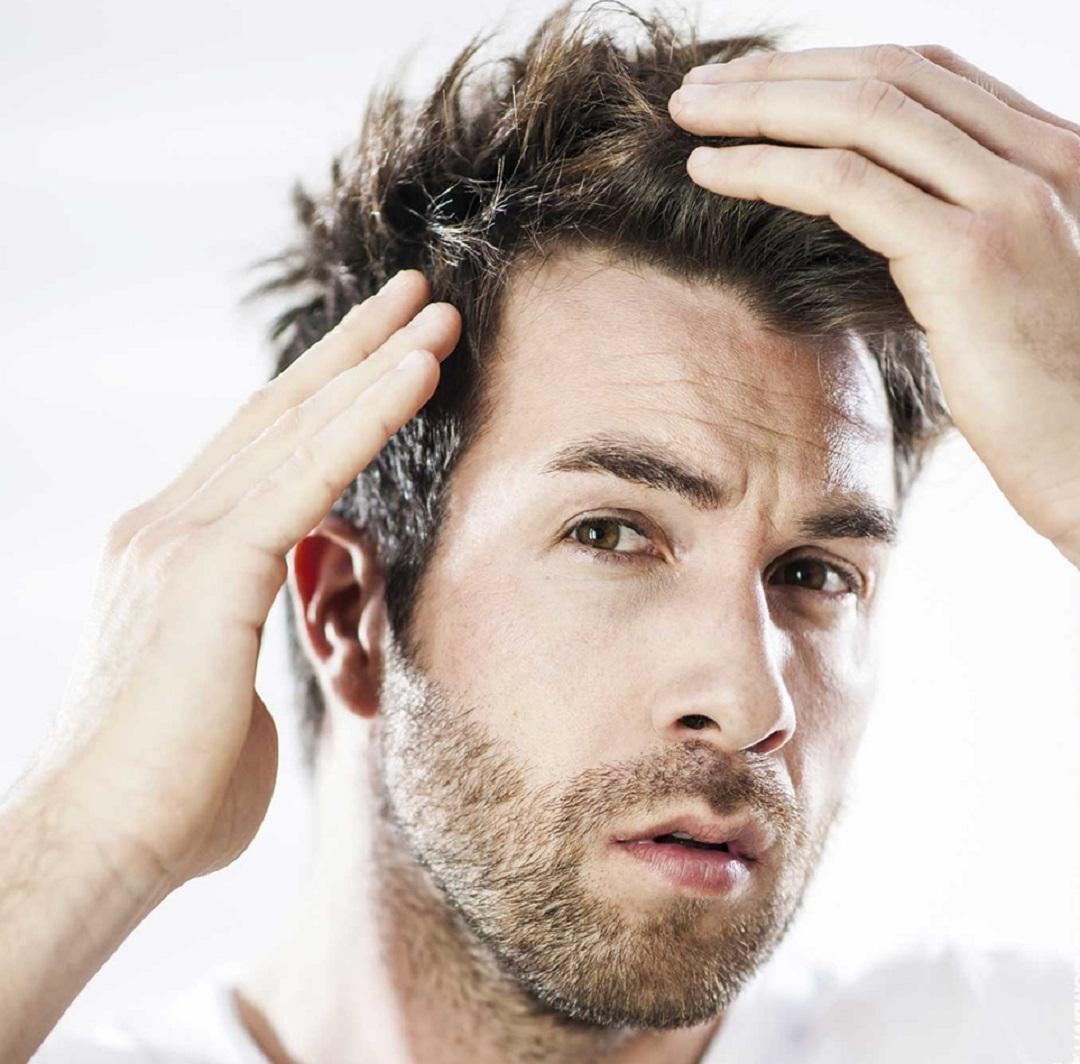 مقال - تكلفة عملية زراعة الشعر في تركيا