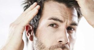 مقال – تكلفة عملية زراعة الشعر في تركيا