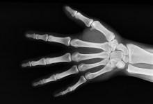 مقال - تعرّف على أبرز 8 عوامل قد تؤثر على صحة العظام!