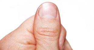 تغير لون الأظافر .. مؤشر على عدد من الأمراض بعضها خطير