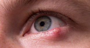 مقال - ما هو مرض شعيرة العين؟