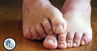 مقال – أبرز أسباب تعرّق الأقدام وطرق علاجها