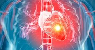 مقال – 5 نصائح للأشخاص الذين يعانون من قصور القلب