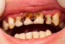 مقال – المشروبات الغازية تؤدي إلى تآكل الأسنان