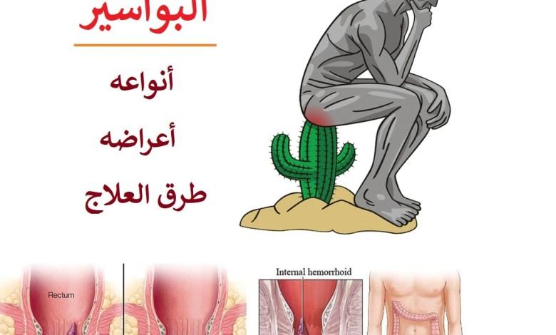 ماهي اعراض البواسير ، أنواعه و طرق العلاج ؟