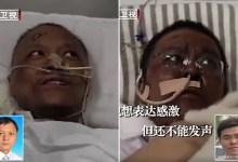 صورة فيروس كورونا يغير لون جلد ناجيين إلى اللون القاتم