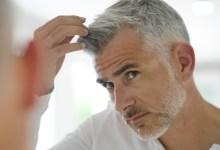 ما الذي يسبب شيب الشعر في سن مبكرة؟