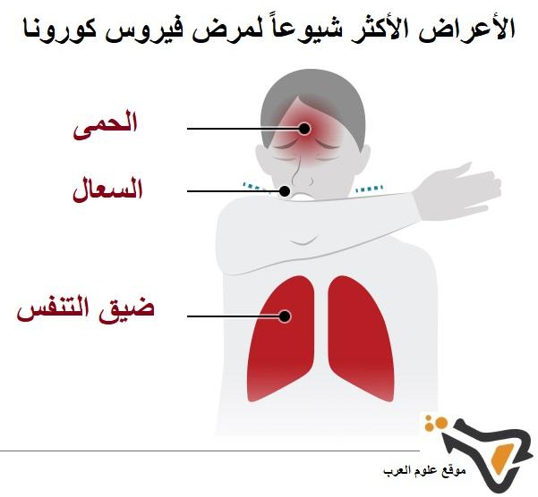 3 الأعراض الأكثر شيوعاً لمرض فيروس كورونا