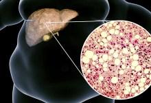 ما هو مرض الكبد الدهني وكيف نتخلص منه؟