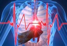 عادات مضرة بصحة القلب أكثر مما نعتقد