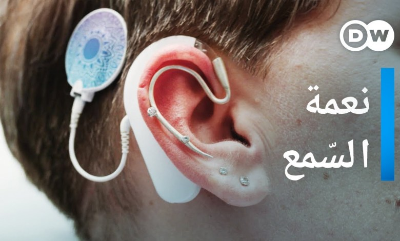 هل تستطيع الآذان الصماء أن تسمع ثانية؟