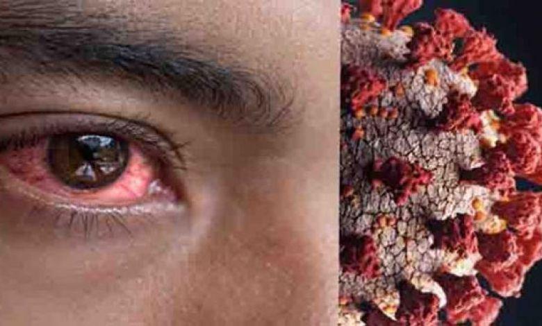 ماهي أعراض الفطر الأسود ؟