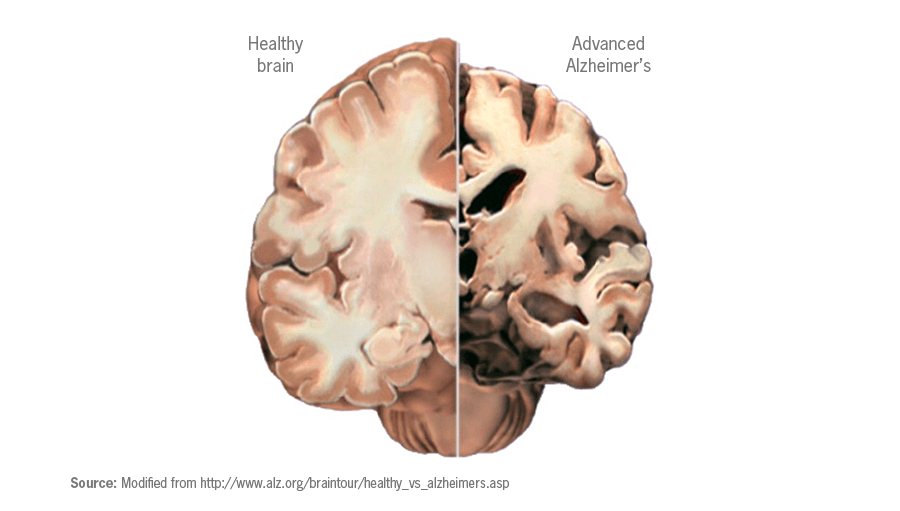 Brain cholesterol associated with increased risk of Alzheimer's disease