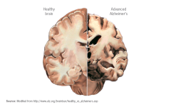 Alzheimer's and My Experience