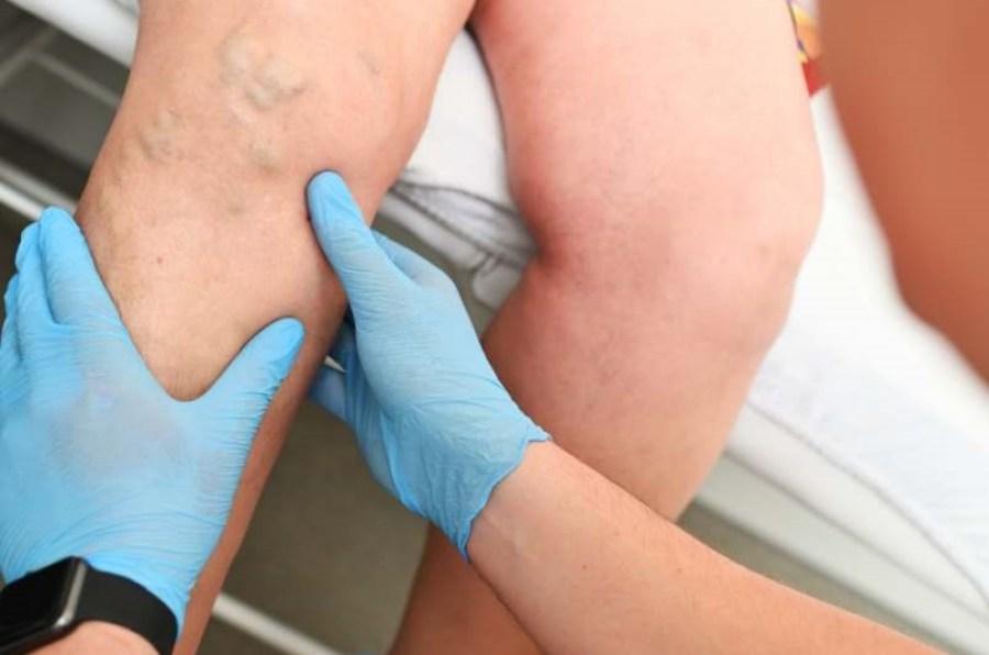 scarabée part