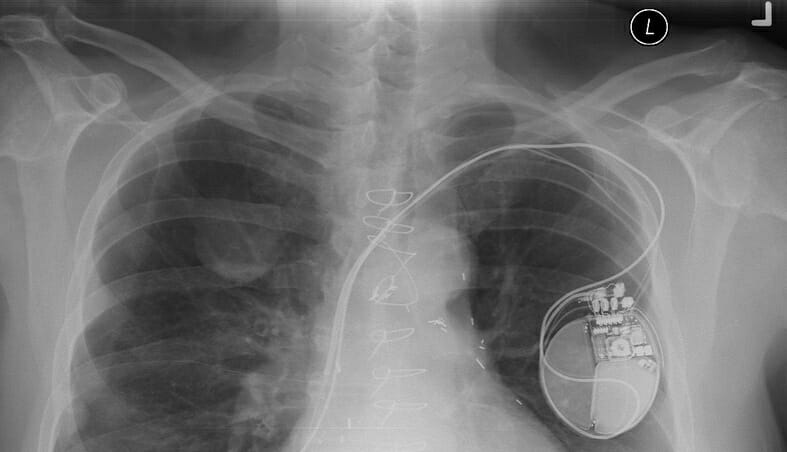 chest-xray-with-device