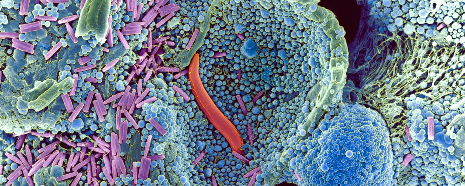 Electron Microscope View Of Soil