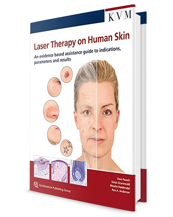 Laser Therapy on Human Skin