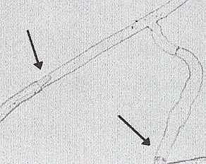 Fig. 9.5. Heterokaryosis and the reversion to homokaryons