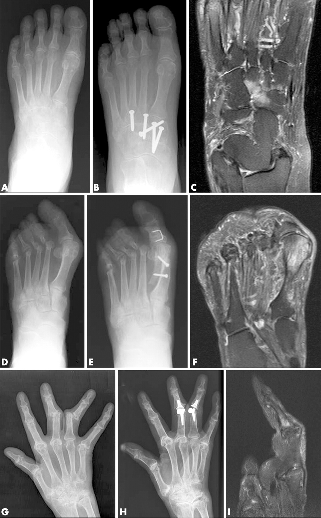 Highgrade MRI bone oedema is common within the surgical