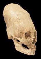 skull2