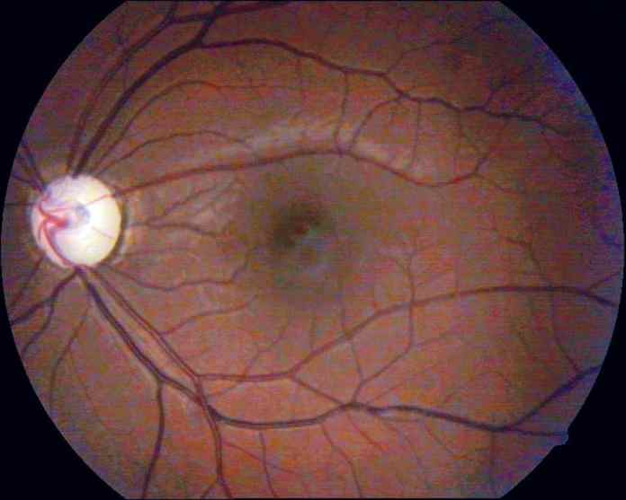 natural protein that protects the eye