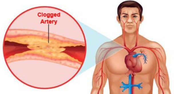 Clogged-Arteries
