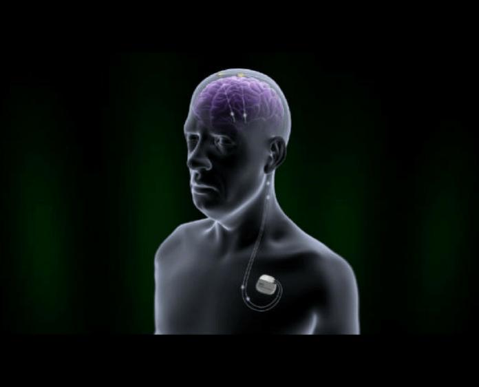 spinonews deep brain simulation