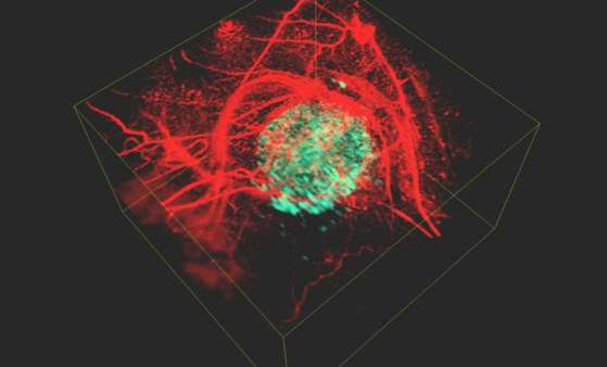 3D images of cancer cells