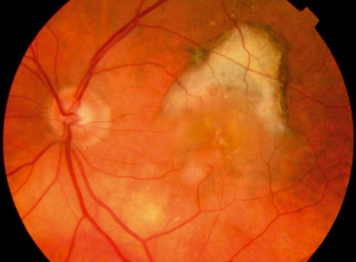 EyeMax Mono lens implant surgery