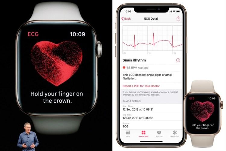 Functia electrocardioagrama de pe Apple Watch 4 functioneaza si in Romania