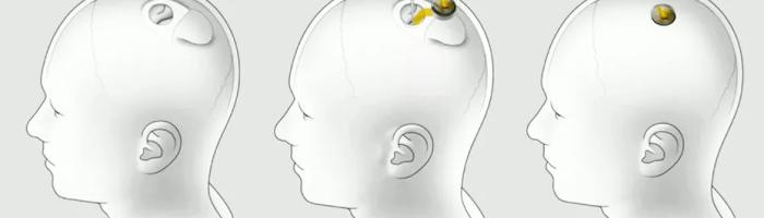Un cip Neuralink a fost implantat in creierul unui porc si a transmis date