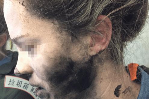 Kablosuz kulaklık kafasında patladı!