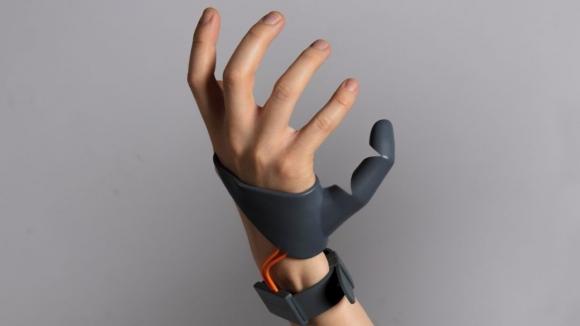 6 parmağınız olsun ister misiniz?