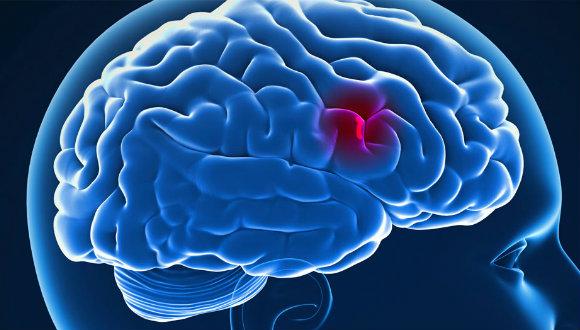 Kök hücre ile felç tedavi edilebilir!